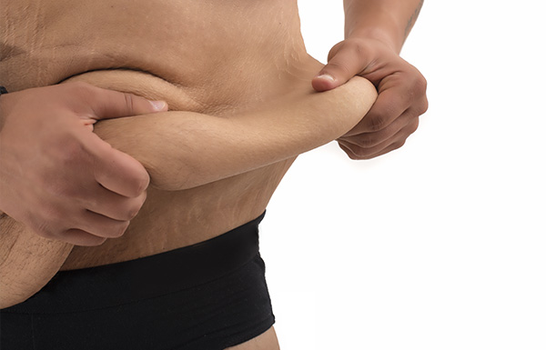 Frequently asked questions about Body Lift Surgery in Melbourne